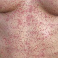 Mononukleose infektiöse: akute aufgetretendes, wenig juckendes, makulo-papulöses Exanthem. Beglei...