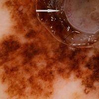 Melanom malignes, superfiziell spreitendes: Außergewöhnliche großes, 6,0x4,0 cm durchmessendes, m...