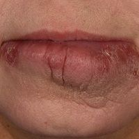 Cheilitis granulomtosa: Monosymptomatische orofaziale Granulomatose. Solitäre, chronische, seit M...