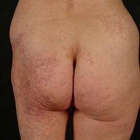 Naevus flammeus: angeborener, asymmetrisch angelegter, syndromaler (orthopädische Fehlstellung)g...