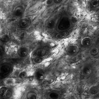 Laser Scanning Mikroskopie: aktinische Elastose
