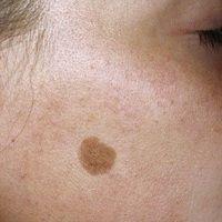 Lentigo solaris: brauner, scharf begrenzter, glatter Fleck im Bereich belichteter Hautpartien (Le...