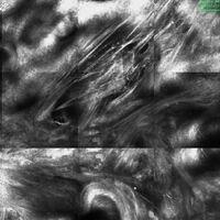 Laser-Scanning-Mikroskopie : Straffe Kollagenfasern unterhalb der homogenen Verquellungszone