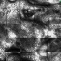 Laser-Scanning-Mikroskopie: Subepitheliale, bandförmige homogene Verquellungszone des kollagenen ...