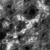 Laser Scanning Mikroskopie: aktinische Elastose, elastotisches Material mit roten Punkten markiert