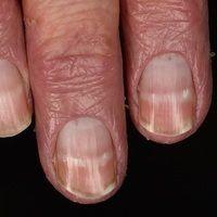 Leuconychia striata: Weiße Querstreifen der Nägel bei vorliegendem Sezary-Syndrom. Oberhalb der w...