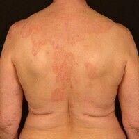 Atopische Dermatitis: eminentchronische dermatitis, mit unscharf begrenzten, juckenden, roten, ...