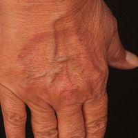 Granuloma anulare disseminatum: Teilmanifestation am rechten Handrücken. Nicht-schmerzhafte, nich...