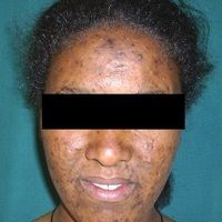 Acne papulo-pustulosa: ausgeprägte postinflammatorische Hyperpigmentierungen nach weitgehender A...