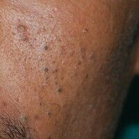 Acne comedonica: massive Komedonenausbildung bei papulopustulöser Acne vulgaris.