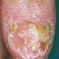 Acrodermatitis continua suppurativa: seit mehreren Jahren bestehendes, pustulöses Krankheitbild m...