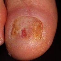Acrodermatitis continua suppurativa: seit Jahren chronisch rezidivierendes Krankheitsbild mit sc...