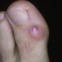 Dorsalzyste, mukoide: seit etwa 1 Jahr bestehender, schmerzloser, ca. 1,5 cm großer, hautfarbener...