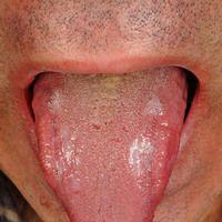 Lichen planus: wenig symptomatische, weiße, glänzende Plaques an beiden seitlichen Zungenränder...