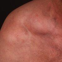 Lipome: kugelige weiche schmerzlose Geschwülste, keine Wachstumstendenz mehr.