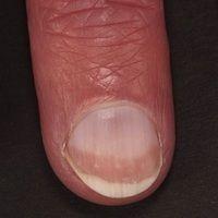 Leukonychie (sog. Halb-und Halb-Nagel):  zonale Leukonychie die v.a. bei Patienten mit chronisch...