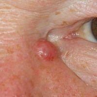 Basalzellkarzinom knotiges: oberflächenglattes, rötliches Knötchen mit randlichen bizarren Gefäße...