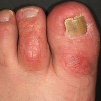 Dyshidrotische Dermatitis: chronisch rezidivierende Dermatitis an mehreren Zehen. Rezidivierende ...