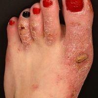 Dyshidrotische Dermatitis: chronisch rezidivierende, hyperkeratotische Dermatitis an Händen und...