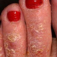 Dyshidrotische Dermatitis: chronisch rezidivierende, hyperkeratotische Dermatitis an Händen und ...