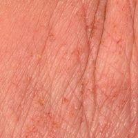 Lichenifikation: unterschiedliche Stadien der Lichenifikation. Vergröberung der Hautfelderung. Au...