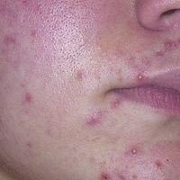 Akne (Therapie): pustulöse Akne zu Beginn einer Therapie mit Isotretinoin.