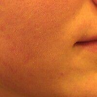 Akne (Therapie): pustulöse Akne nach einer 6-monatigen Therapie mit Isotretinoin.