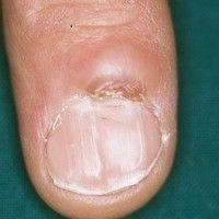 Dorsalzyste, mukoide: seit etwa 1 Jahr bestehender, schmerzloser, ca. 1,0 cm großer, hautfarbener...