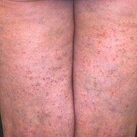Dermatose akute febrile neutrophile: akutes, exanthematisches Krankheitsbild mit Befall von Gesi...