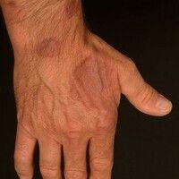 Granuloma anulare disseminatum: nicht-schmerzhafte, nicht-juckende, disseminierte, großflächige P...