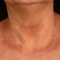 Airborne Contact dermatitis:chronisches (>6 Wochen) flächenhaftes, sehr stark juckendes und b...