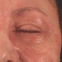 Airborne Contact Dermatitis:akute, flächenhafte, enorm juckendeund brennende Dermatitismitunr...
