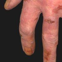 Pigmente der Haut: Nikotinverfärbung von Haut und Nägel der Finger.