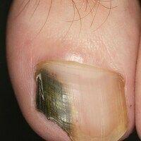 Nagel grün-schwarzer: Verfärbung der Nagelmatrix durch Schimmelpilzbefall.