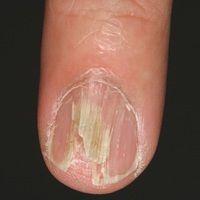 Onychorrhexis mit blätterteigartiger Ausplitterung des Nagels.