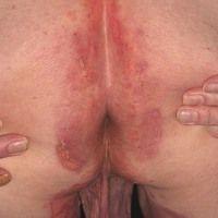 Pemphigoid bullöses:generalisiertes Krankheitsbild. Flächenhafter perianaler Befall mit Juckrei...