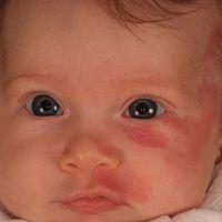 Naevus flammeus (Port wine stain):kongenitale, in V2-Verteilung lokalsierte,völlig symptomlose ...