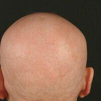 Alopecia areata totalis:bis auf wenige verbliebeneEinzelhaare kompletter Haarverlust an Capilli...