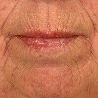 Atrophie, senile: altersgerechte Involution der Lipppenhaut mit ausgeprägter radiärer Furchenbild...