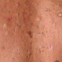 Acne vulgaris (Übersicht): Detailaufnahme: multiple, disseminierte, 0,3-1,2 cm große Retentionszy...