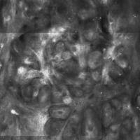Basalzellkarzinom, Laser-Scanning-Mikroskopie, Detail mit Tumornestern, Palisadenstellung der Zel...