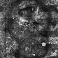 Basalzellkarzinom, Laser-Scanning-Mikroskopie, Übersicht