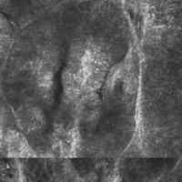 Basalzellkarzinom: Laser-Scanning-Mikroskopie, Detailaufnahme, Tumornest mit Palisadenstellung de...