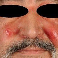 Erysipel akutes: akut aufgetretene, seit 4 Tagen bestehende, zunehmende, glatte, flächenhafte, sc...