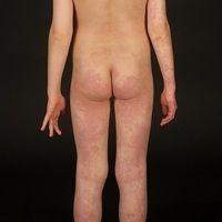 Klippel-Trénaunay-Syndrom:ausgedehnte vaskuläre Malformation mit großflächigem, den Stamm, den r...