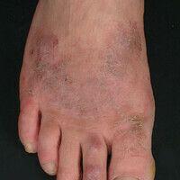 Nummuläre Dermatitis (nummuläres/mikrobielles Ekzem): chronisch aktive, seit 8 Wochen exzerbiert...