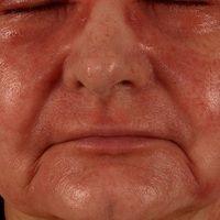 Airborne Contact Dermatitis (Therapieverlauf): Die 54-Jahre alte Floristin bemerkte bereits währ...