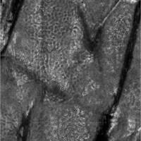 Epidermis, Laser-Scanning-Mikroskopie - Felderhaut