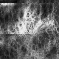Kollagenfasern, Laser-Scanning-Mikroskopie