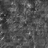 Malignes Melanom auf dem Boden eines dermalen Naevuszellnaevus, Laser Scanning Mikroskopie